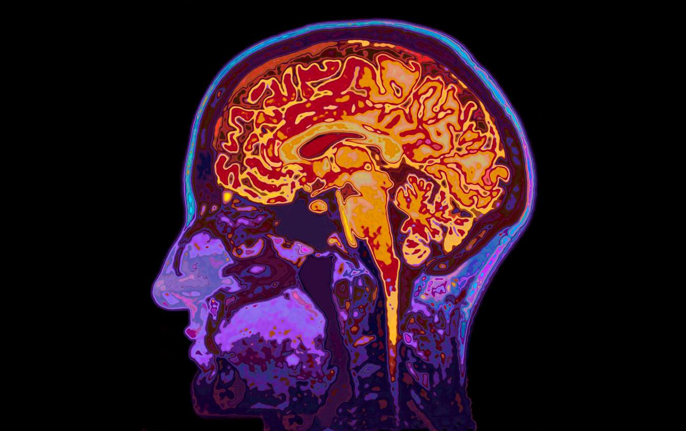 Неврологические расстройства: этиология и патогенез